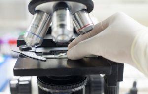 Diventare ingegnere biomedico Milano